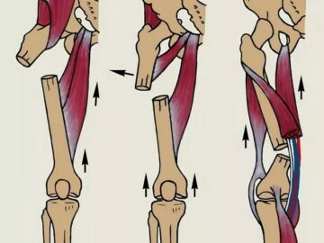 Перелом бедра причины, симптомы и лечение