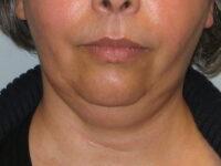Послеродовой тиреоидит причины, симптомы, лечение
