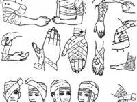 Правила наложения повязок на раны. Различные виды повязок