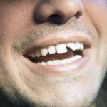 Выбитый зуб - что делать после травмы зуба
