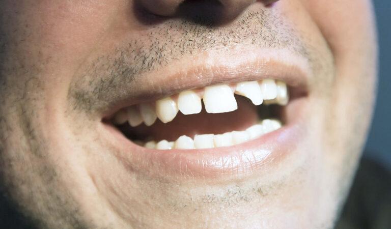 Выбитый зуб — что делать после травмы зуба?
