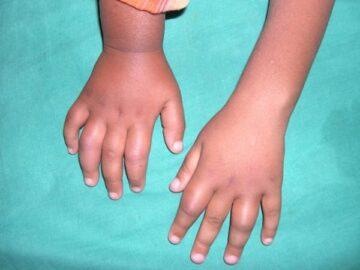 Что такое ювенильный артрит