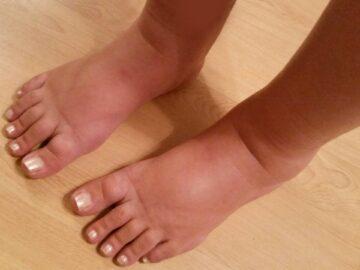Ноги отекают и болят - что делать